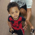 Amazing Toddler Takes His First Steps Thanks To Prosthetic Legs